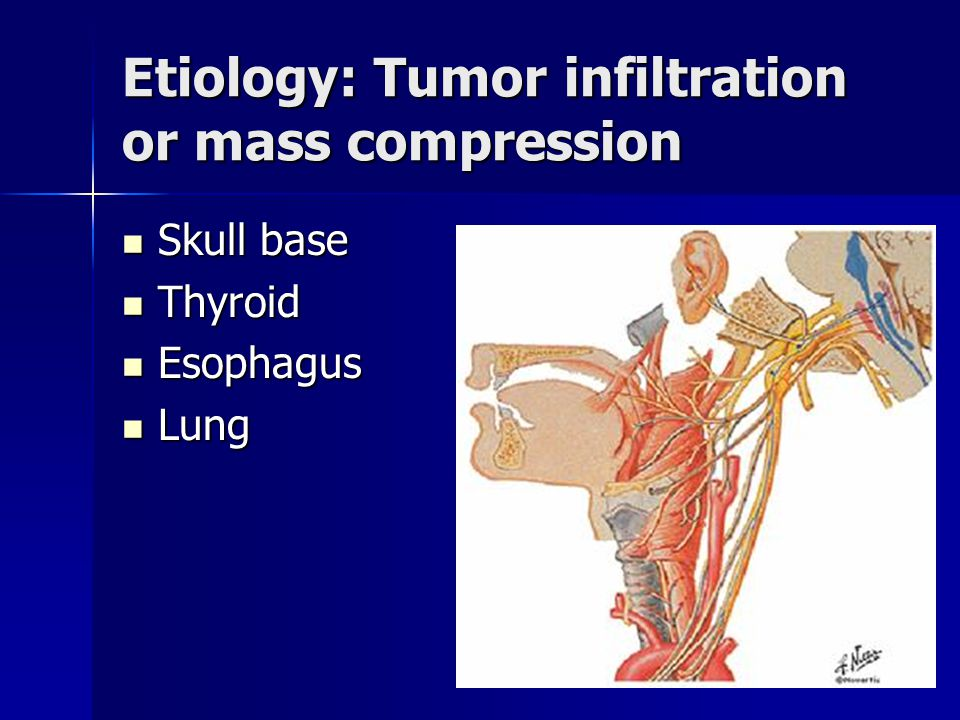 Etiology: Tumor infiltration or mass compression