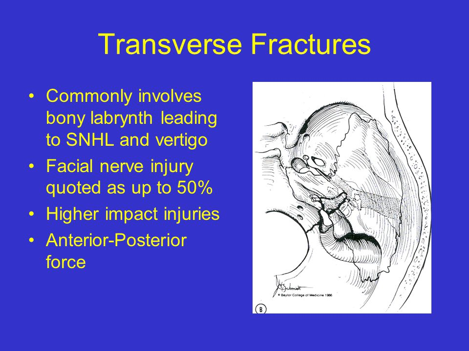 Transverse Fractures Commonly involves bony labrynth leading to SNHL and vertigo. Facial nerve injury quoted as up to 50%