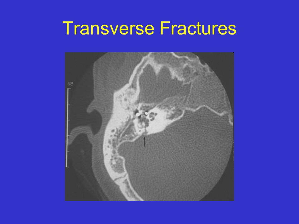 Transverse Fractures