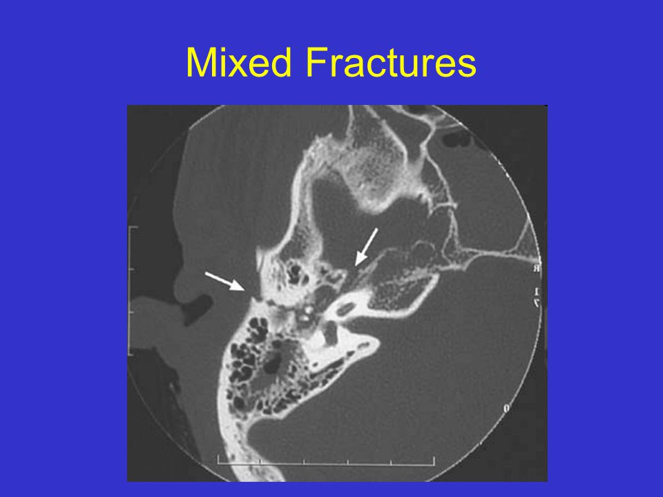 Mixed Fractures