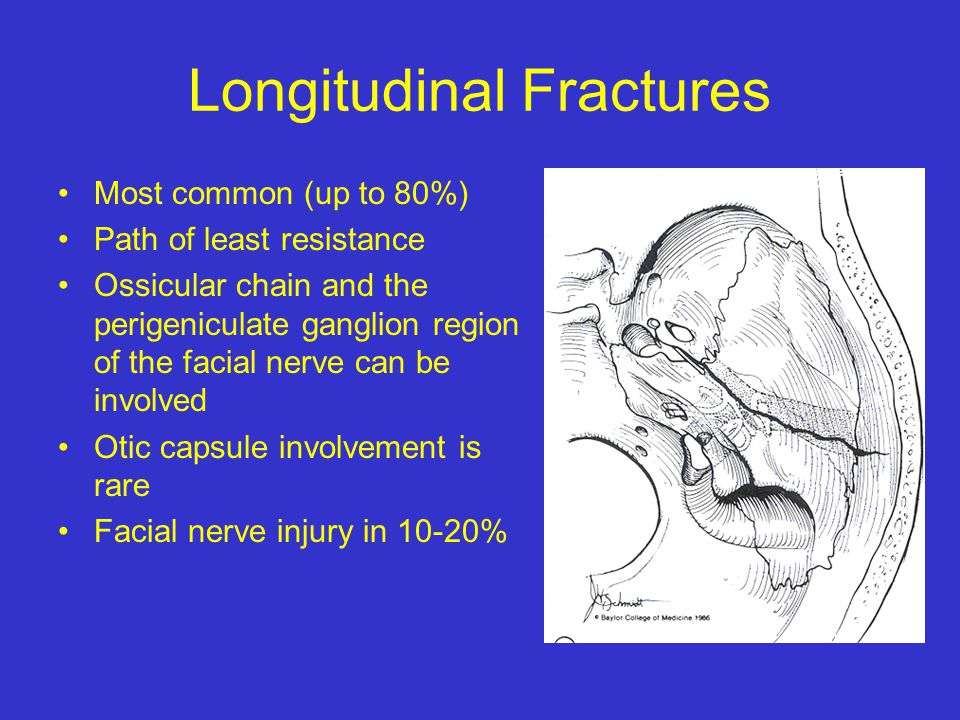 Temporal Bone Fractures And Surgical Approaches For Csf Leaks Ppt