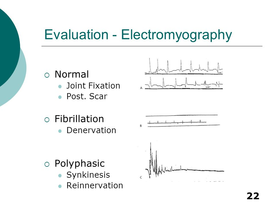 Evaluation - Electromyography