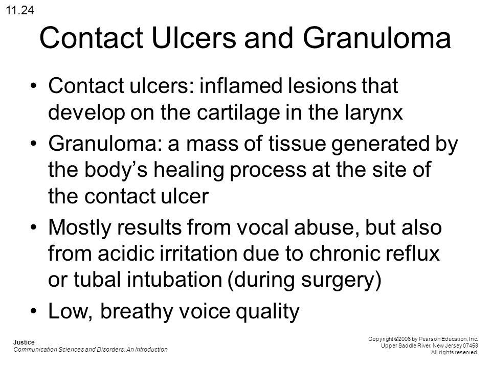 Contact Ulcers and Granuloma