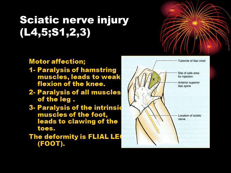 Sciatic nerve injury (L4,5;S1,2,3)