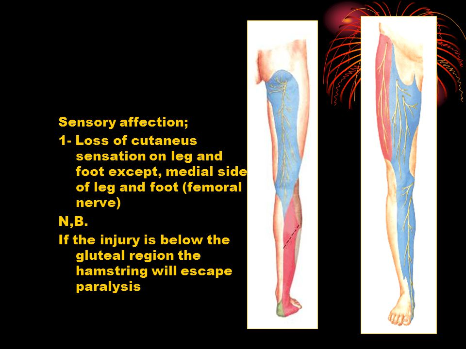 Sensory affection; 1- Loss of cutaneus sensation on leg and foot except, medial side of leg and foot (femoral nerve)
