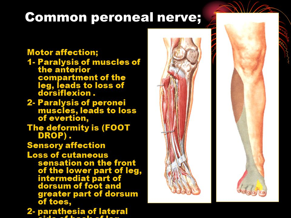 Common peroneal nerve;
