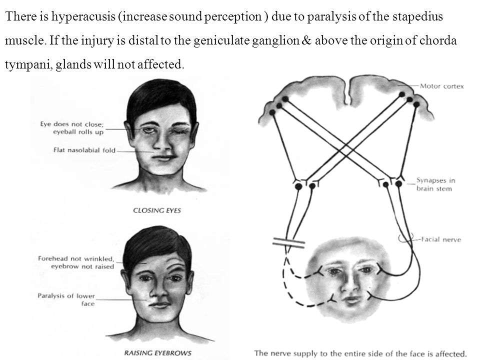 There is hyperacusis (increase sound perception ) due to paralysis of the stapedius muscle.