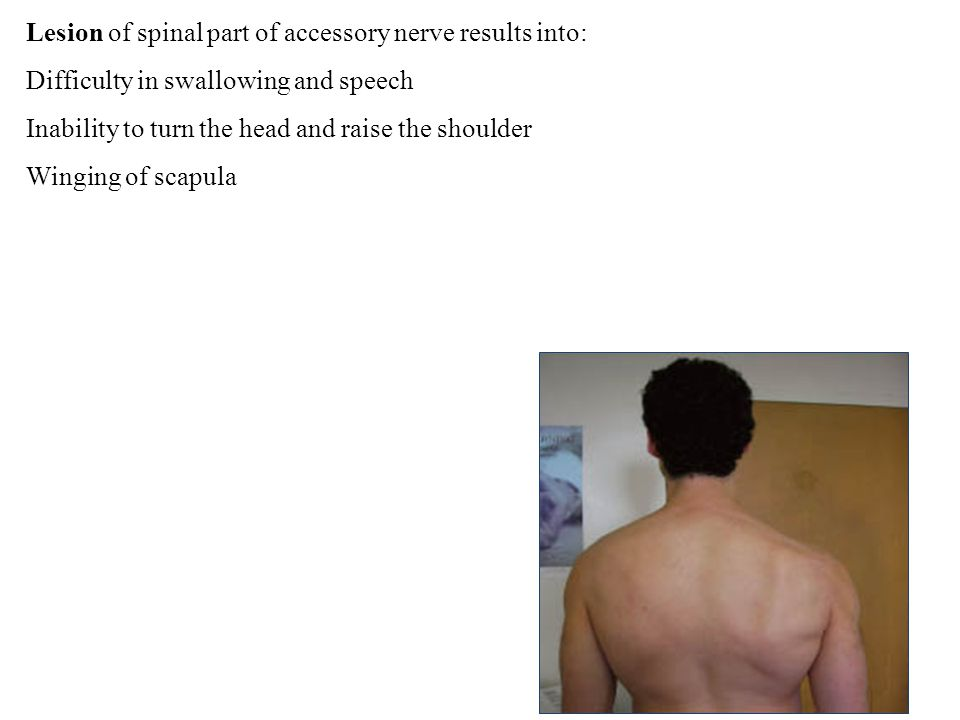 Lesion of spinal part of accessory nerve results into: