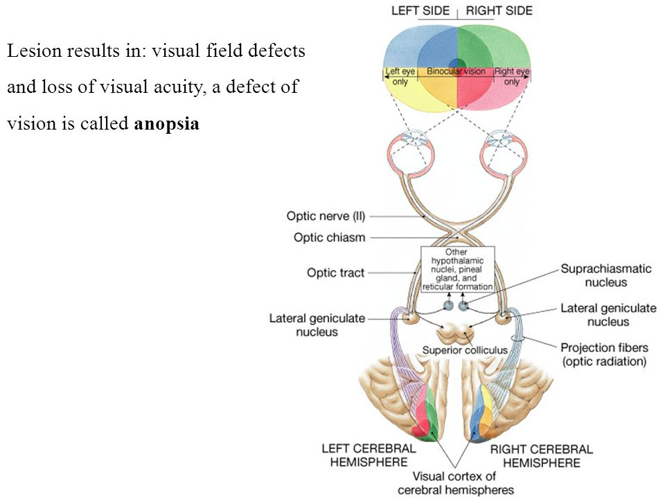 Lesion results in: visual field defects and loss of visual acuity, a defect of vision is called anopsia