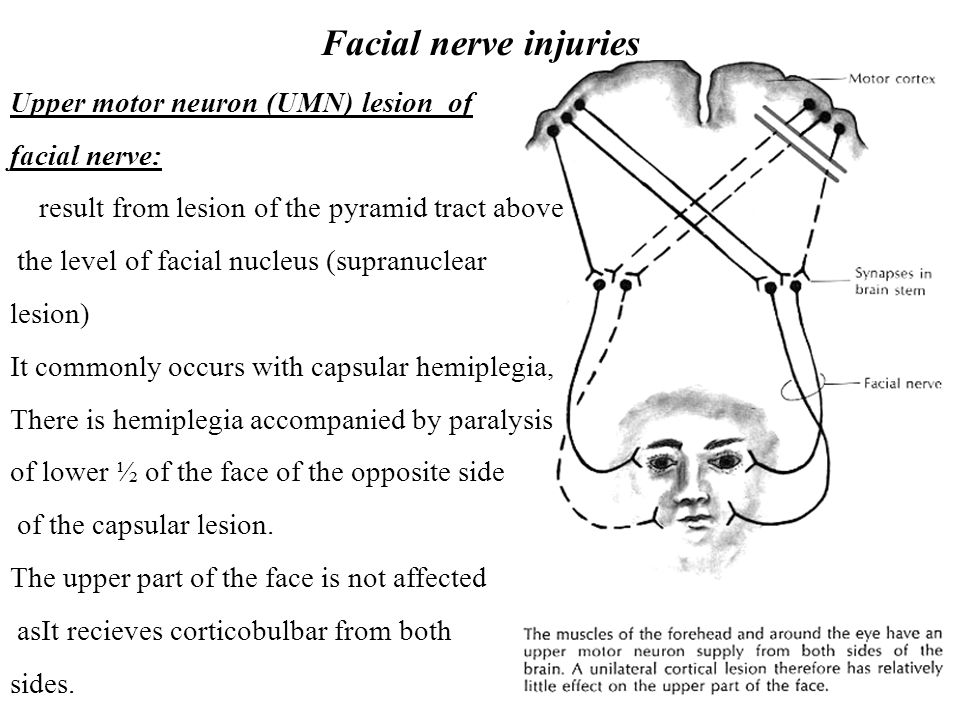 Facial nerve injuries Upper motor neuron (UMN) lesion of facial nerve: