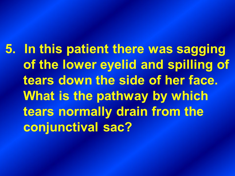 In this patient there was sagging of the lower eyelid and spilling of