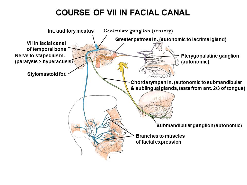 COURSE OF VII IN FACIAL CANAL