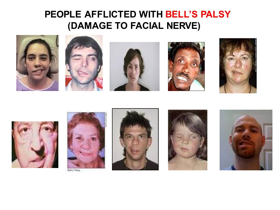 PEOPLE AFFLICTED WITH BELL'S PALSY