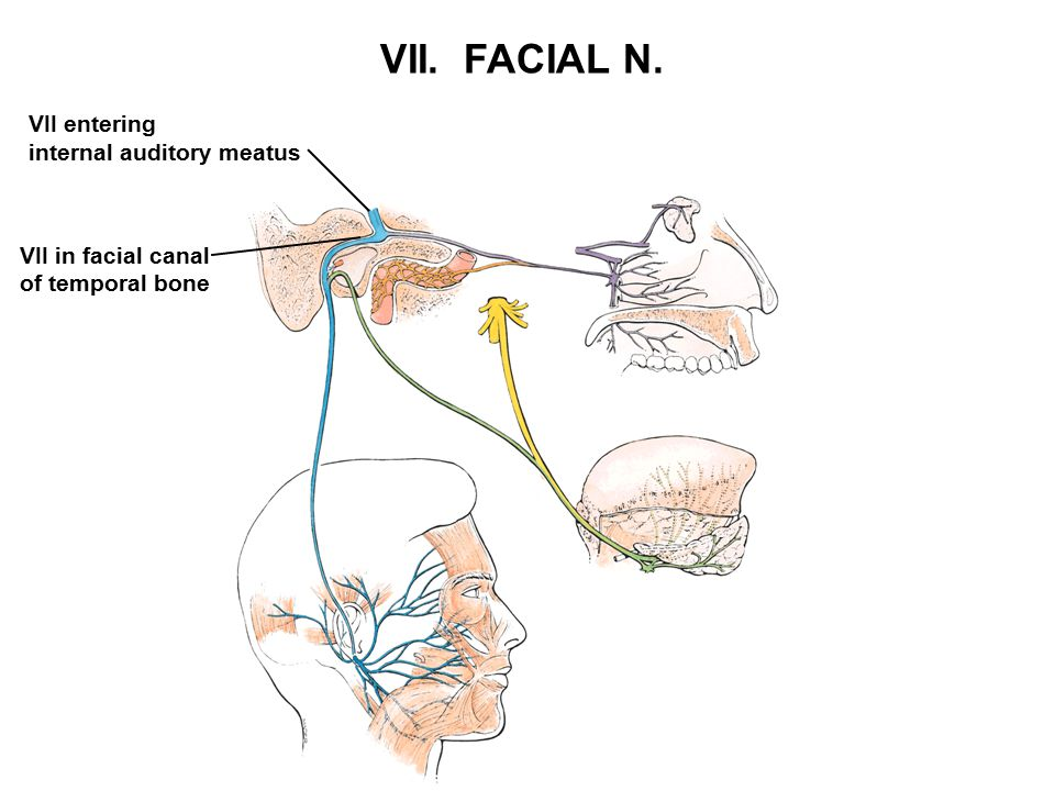 VII. FACIAL N. VII entering internal auditory meatus