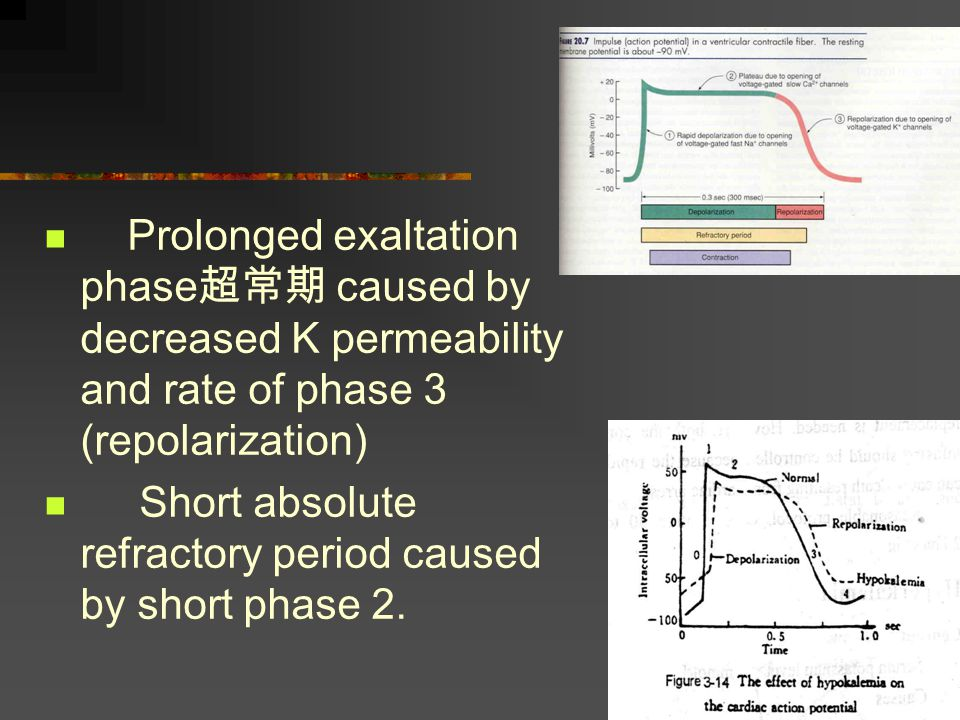 Prolonged exaltation phase超常期 caused by decreased K permeability and rate of phase 3 (repolarization)