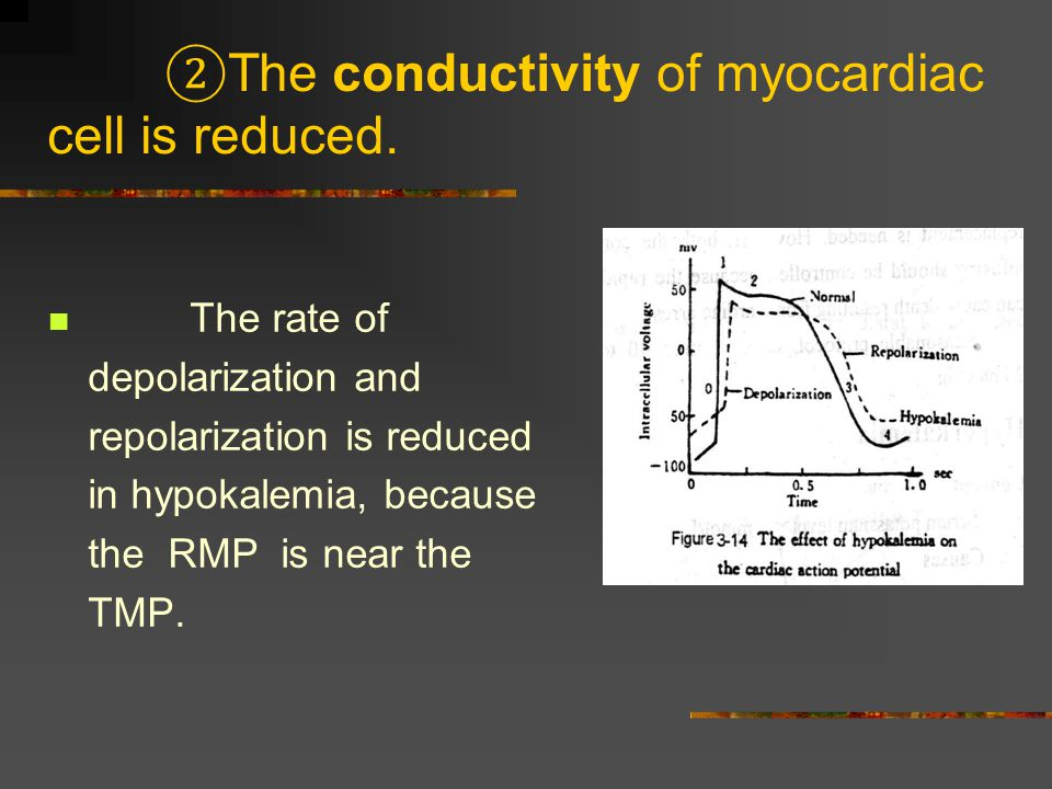 ②The conductivity of myocardiac cell is reduced.