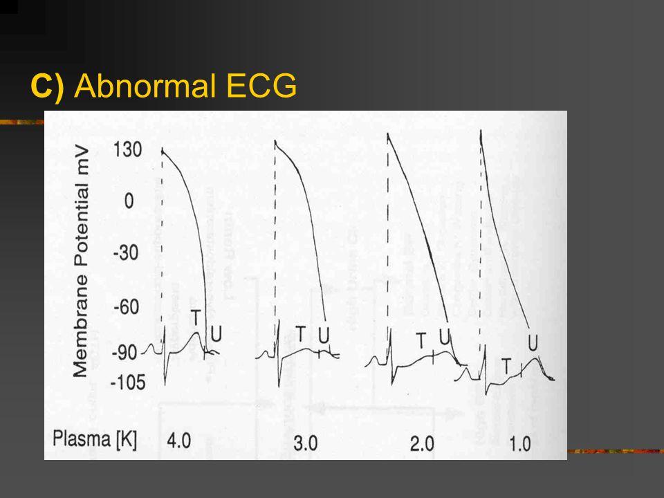 C) Abnormal ECG