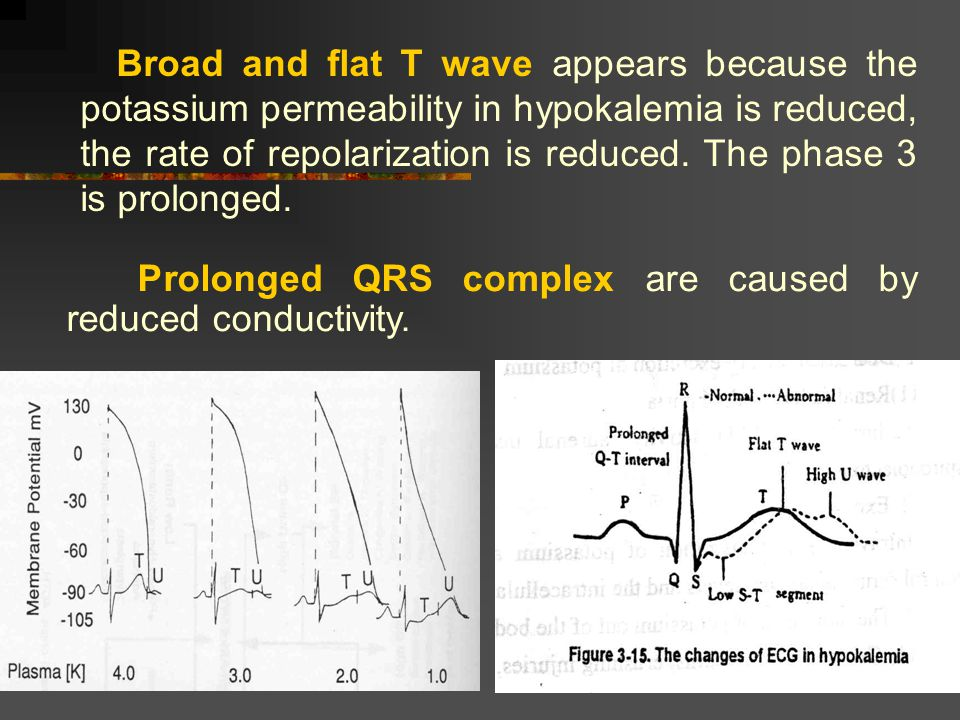 Prolonged QRS complex are caused by reduced conductivity.