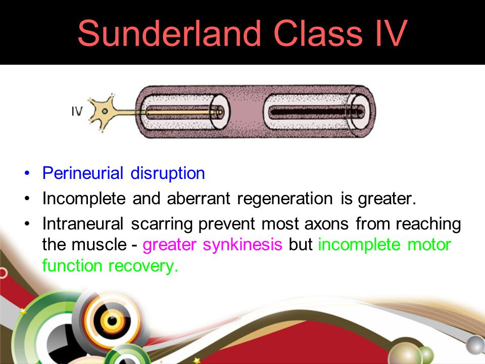 Sunderland Class IV Perineurial disruption