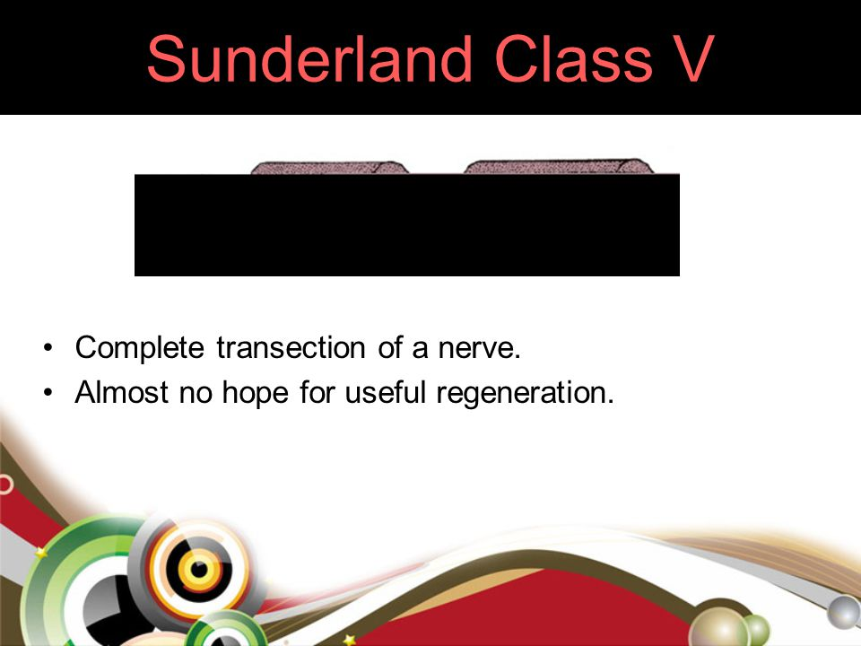 Sunderland Class V Complete transection of a nerve.