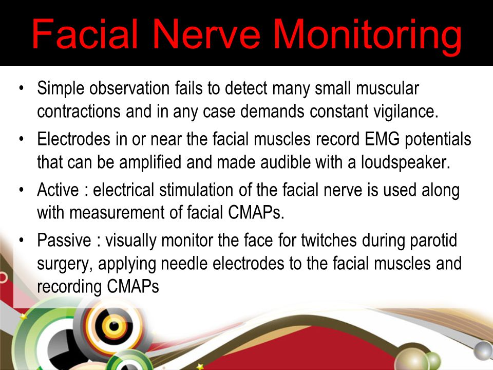 Facial Nerve Monitoring