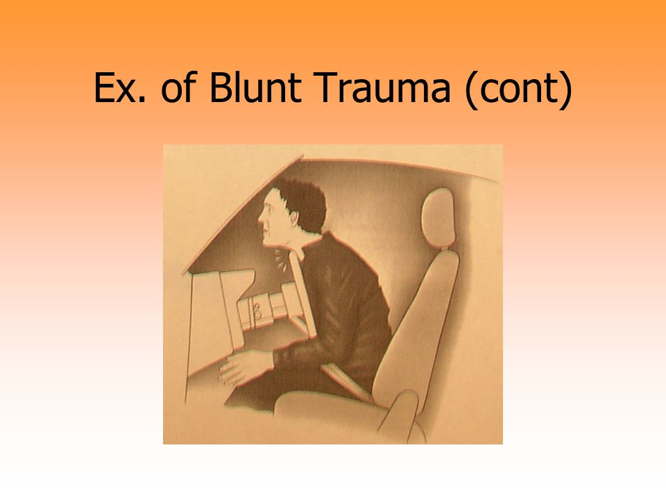 Ex. of Blunt Trauma (cont)