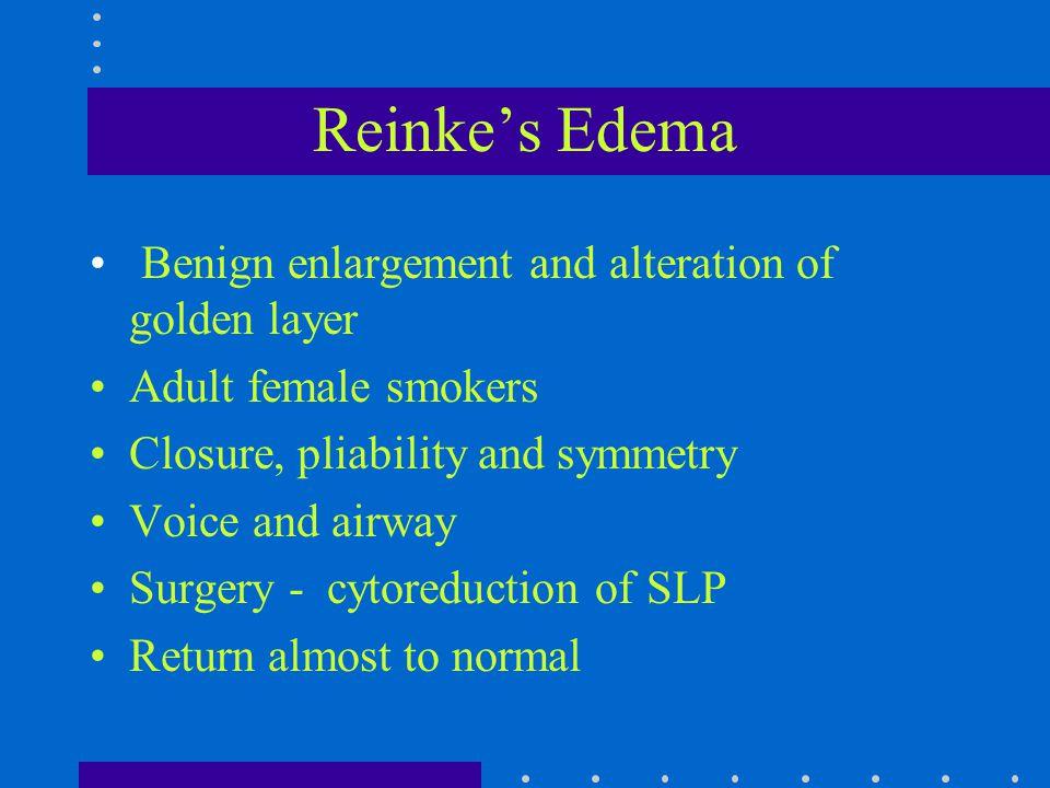 Reinke's Edema Benign enlargement and alteration of golden layer