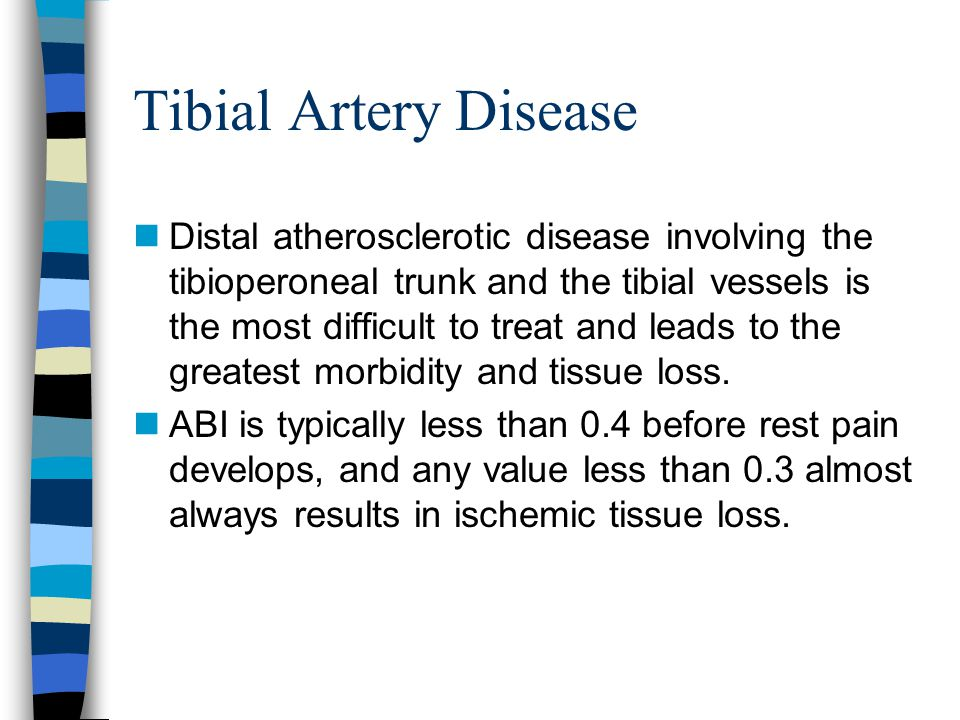 Tibial Artery Disease