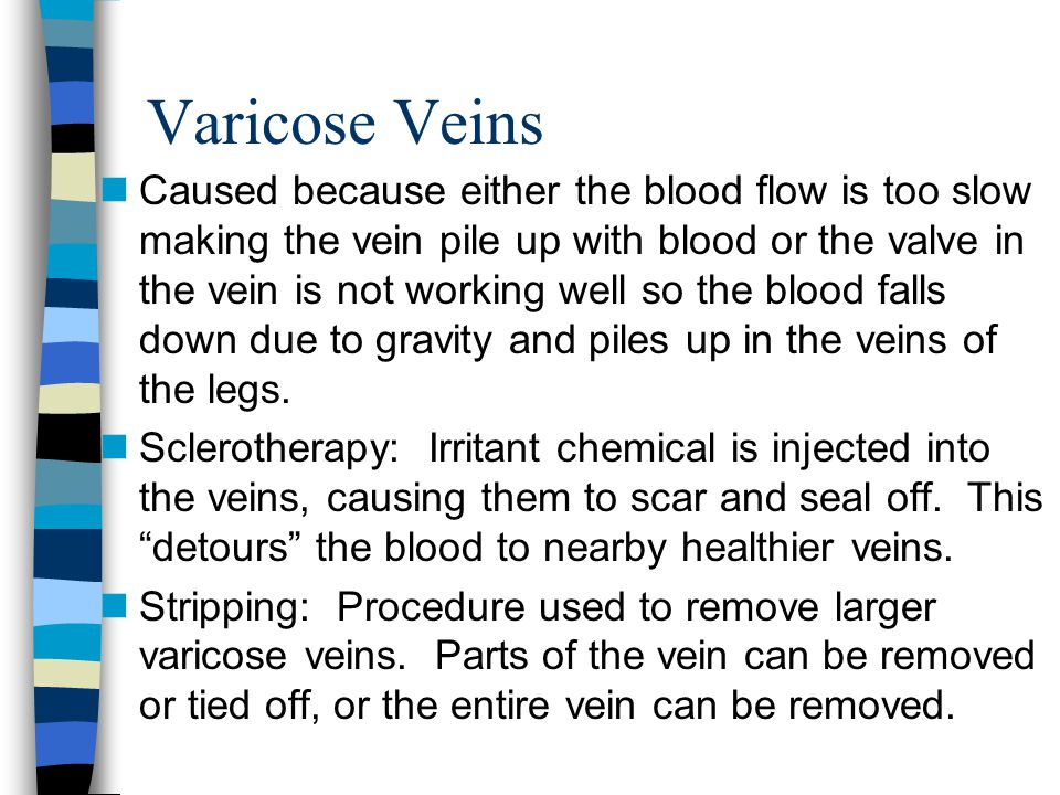management of varicose veins pdf