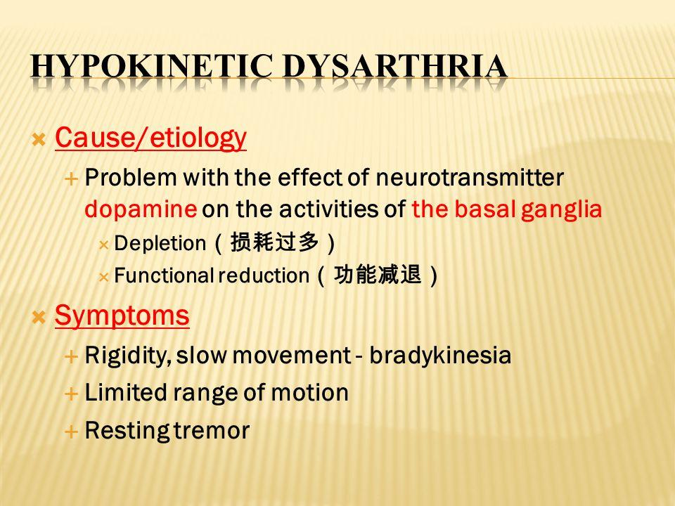 Hypokinetic Dysarthria