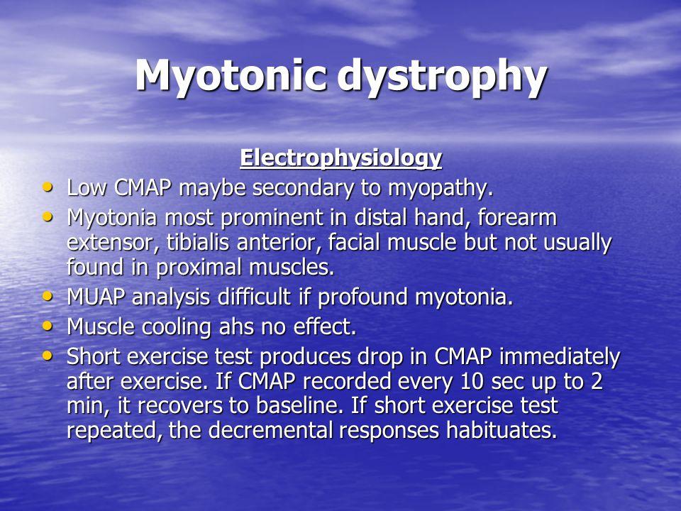 Myotonic dystrophy Electrophysiology