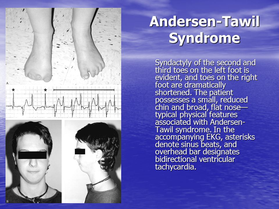 Andersen-Tawil Syndrome