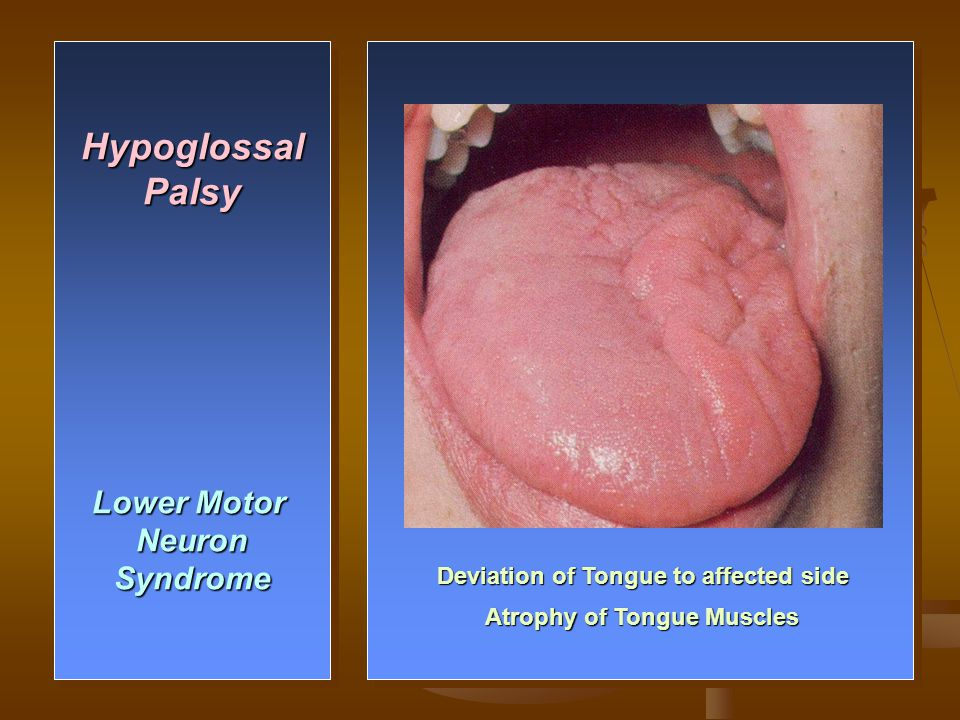 Deviation of Tongue to affected side Atrophy of Tongue Muscles