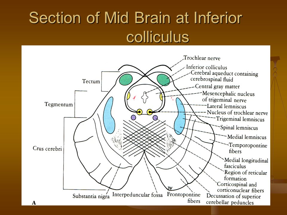 Section of Mid Brain at Inferior colliculus