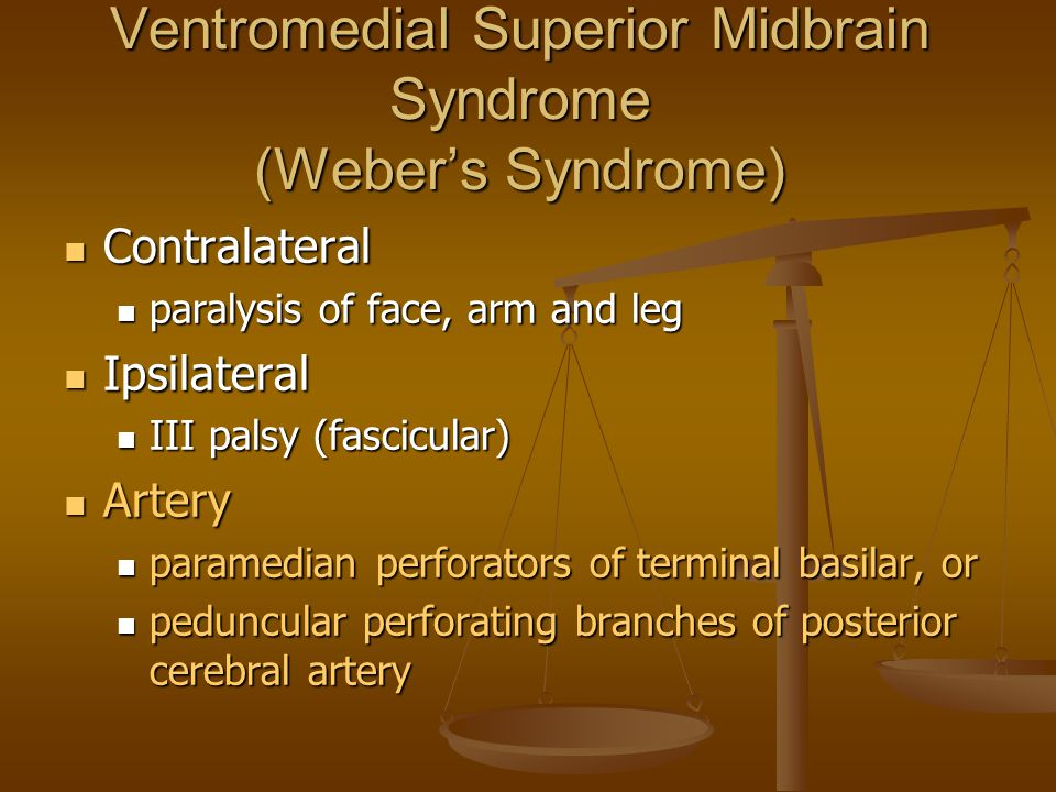 Ventromedial Superior Midbrain Syndrome (Weber's Syndrome)