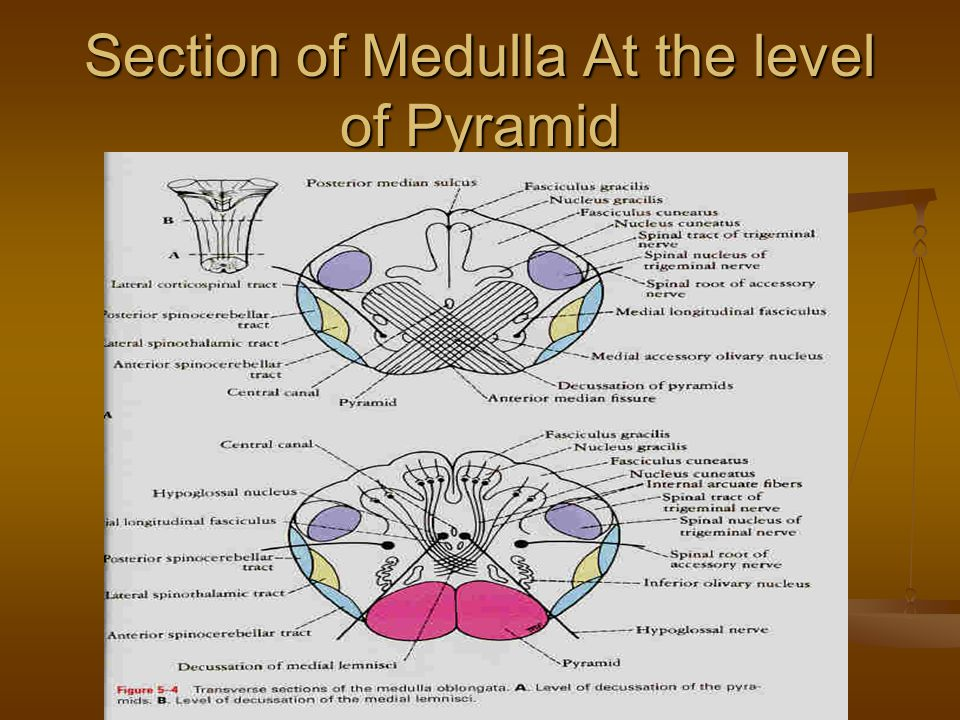 Section of Medulla At the level of Pyramid