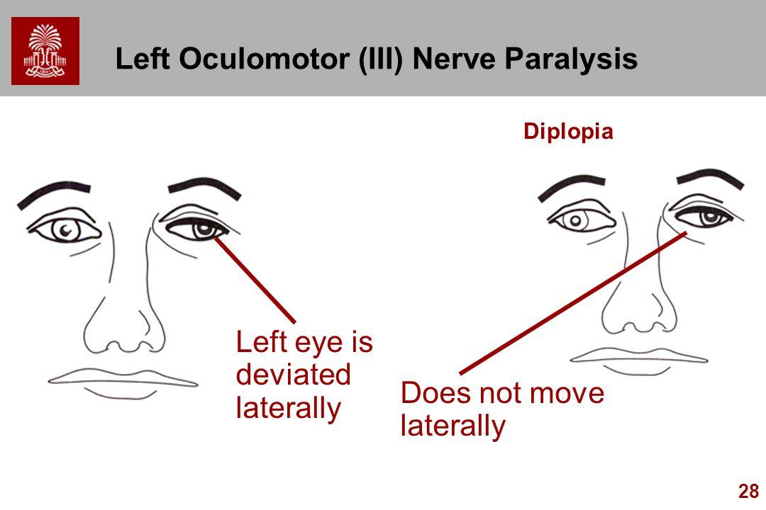 Left Oculomotor (III) Nerve Paralysis