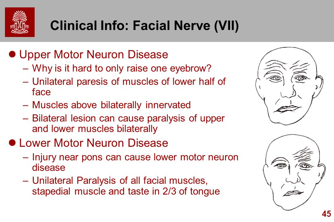 Chapter 15 cranial nerves ppt video online download What is lower motor neuron disease