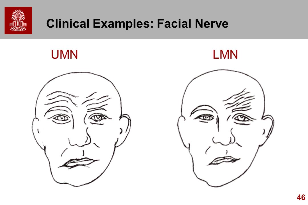 Clinical Examples: Facial Nerve
