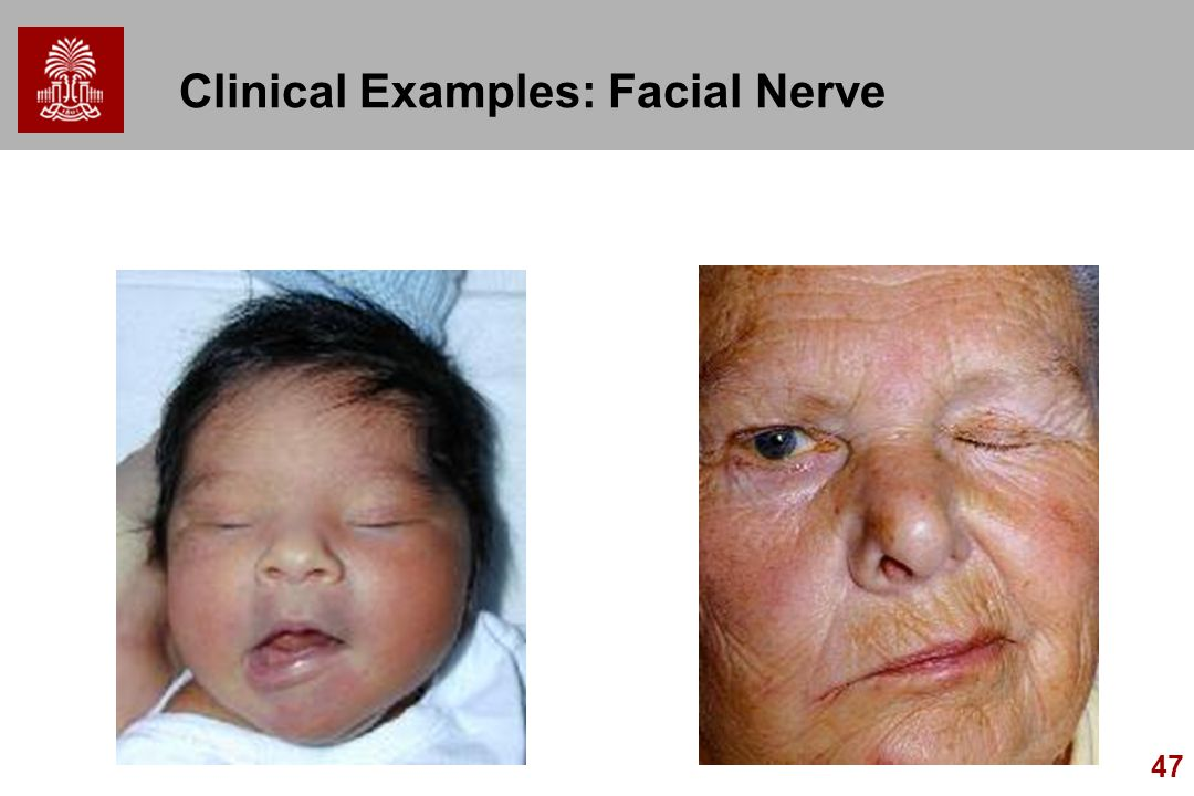Is clinical facial