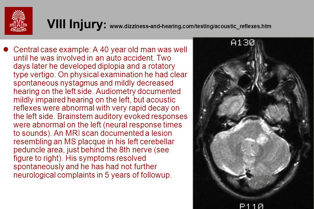 VIII Injury: www. dizziness-and-hearing. com/testing/acoustic_reflexes