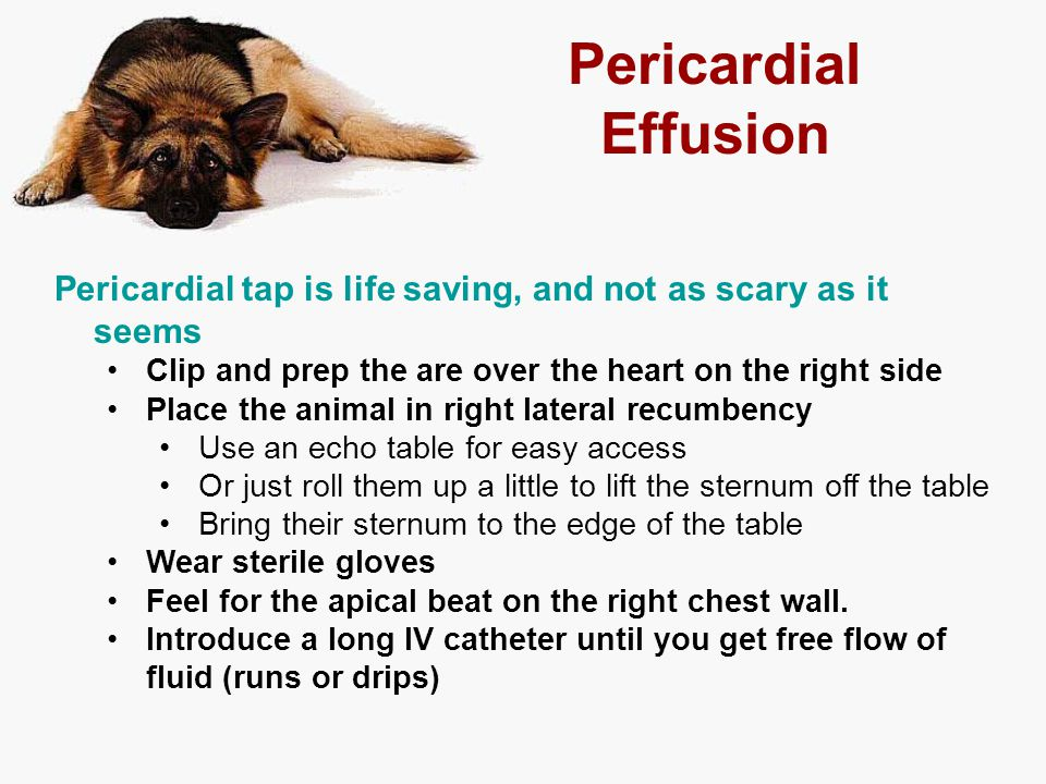 Pericardial Effusion Pericardial tap is life saving, and not as scary as it seems. Clip and prep the are over the heart on the right side.