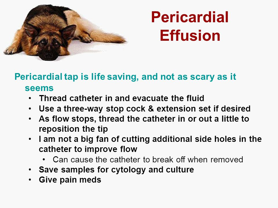 Pericardial Effusion Pericardial tap is life saving, and not as scary as it seems. Thread catheter in and evacuate the fluid.