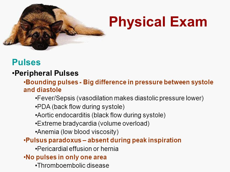 Physical Exam Pulses Peripheral Pulses
