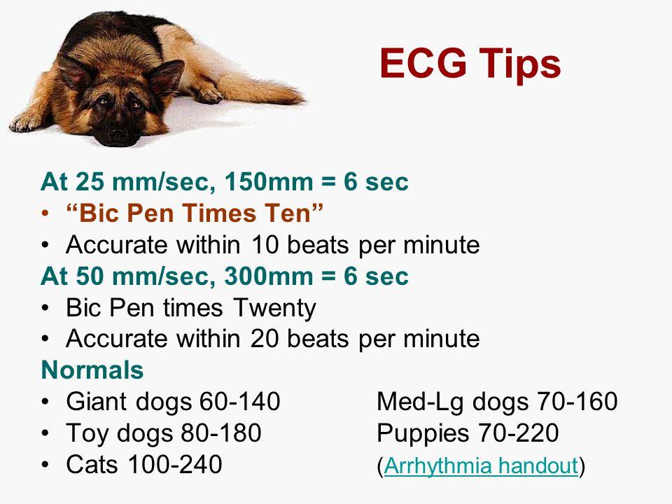 ECG Tips At 25 mm/sec, 150mm = 6 sec Bic Pen Times Ten