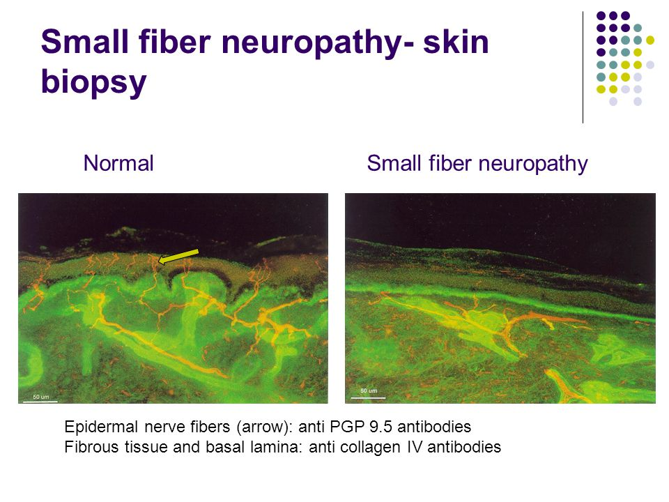 Small fiber neuropathy- skin biopsy