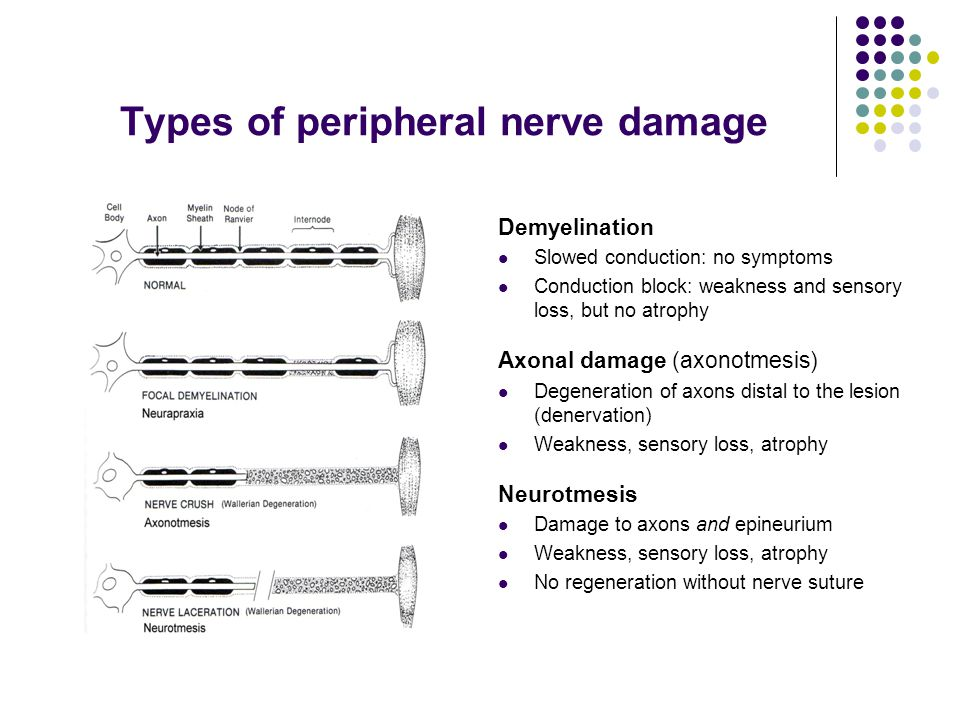 Types of peripheral nerve damage