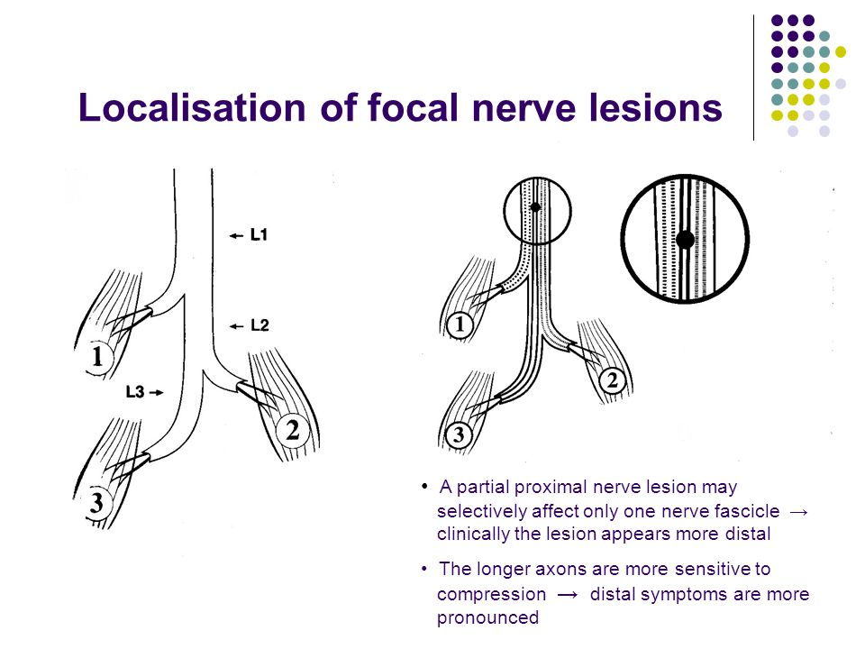 Localisation of focal nerve lesions