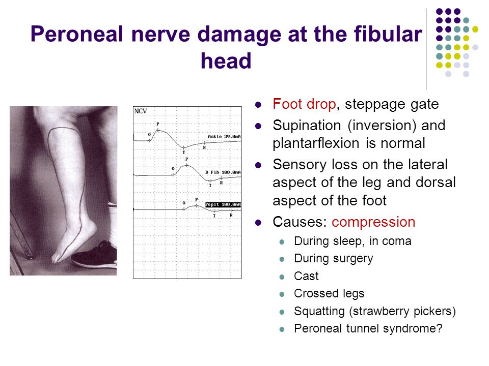 Peroneal nerve damage at the fibular head