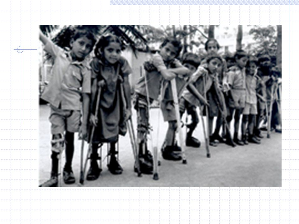 Victims of paralytic polio